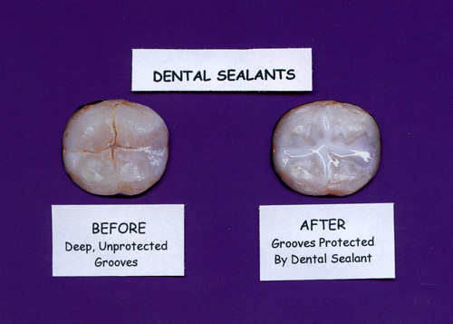 Dental Sealants Example